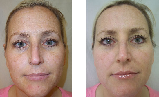 44-Year-Old Female<br><Strong>6 DermaFrac Treatments</strong> (Lighten)<br>Treatment consisted of DermaFrac Micro-Channeling with Kojic Acid Lightening Infusion<br>Courtesy of Dr. Alberto Carro, Wichita, Kansas