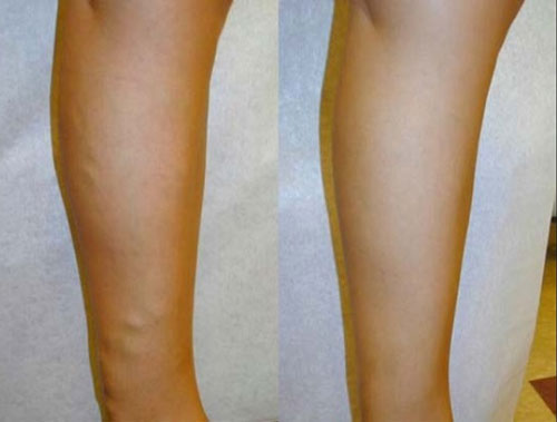 evlt-vein-treatment-before-&-after1