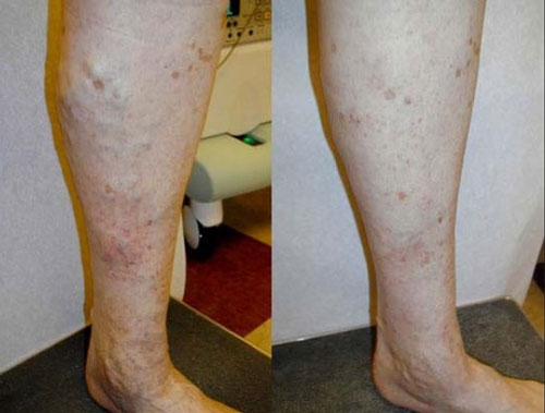 evlt-vein-treatment-before-&-after2
