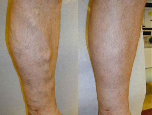 evlt-vein-treatment-before-&-after3