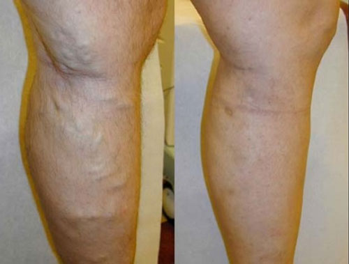 evlt-vein-treatment-before-&-after4