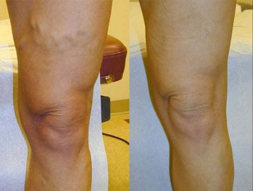 evlt-vein-treatment-before-&-after5