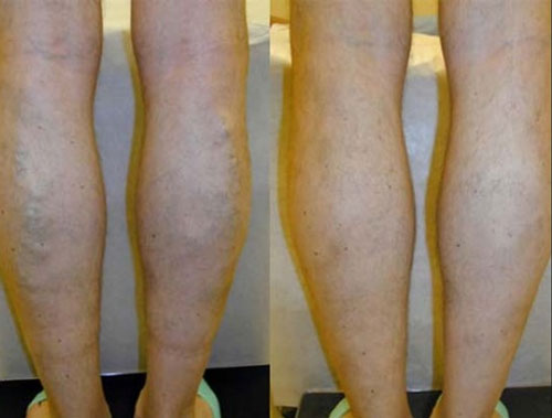 evlt-vein-treatment-before-&-after6