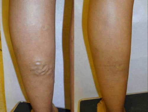 evlt-vein-treatment-before-&-after7