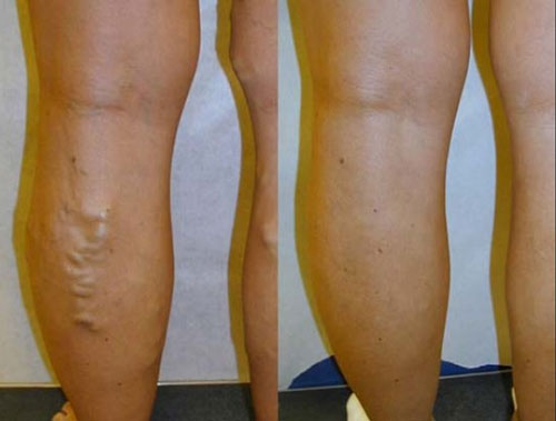 evlt-vein-treatment-before-&-after8