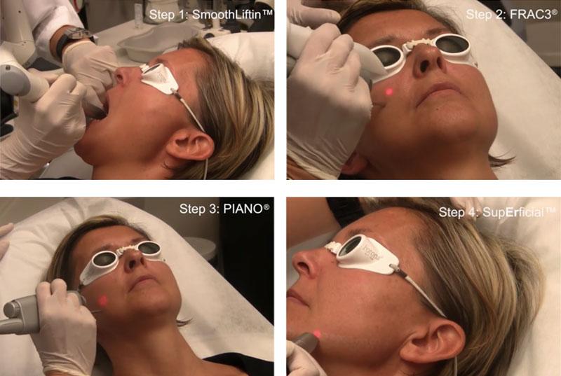 fotona-4d-laser-treatment-procedure