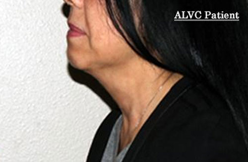 kybella-female-after-photo-alvc