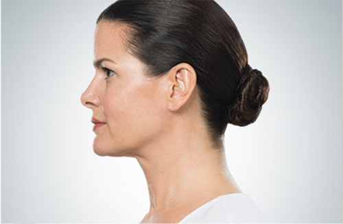 kybella-female-after-photo
