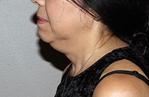 kybella-female-before-photo-alvc