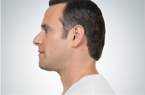 kybella-male-after-photo