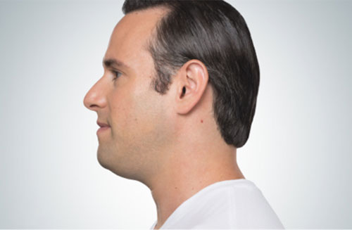 kybella-male-before-photo