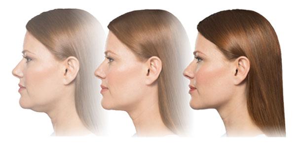 kybella-treatment-progression-photo
