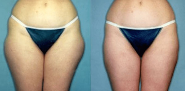 laser-lipo-before-&-after-photo-front