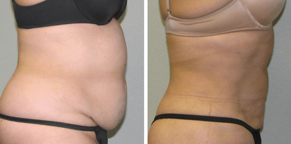 laser-lipo-before-&-after-photo-side