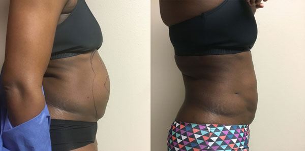 laser-lipo-before-&-after-photo-side2