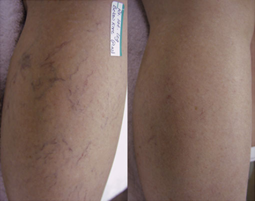 laser-spider-vein-before-and-after-