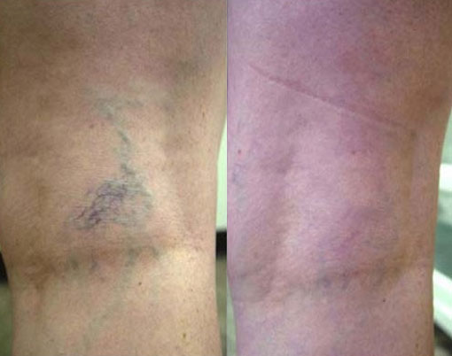 Laser Spider Vein Before and After
