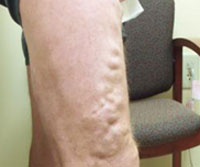 microphlebectomy-before-photo