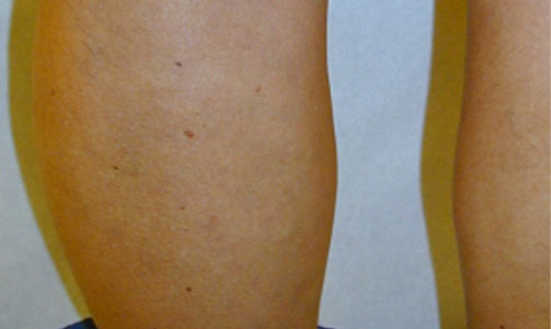 sclerotherapy-after-leg-photo