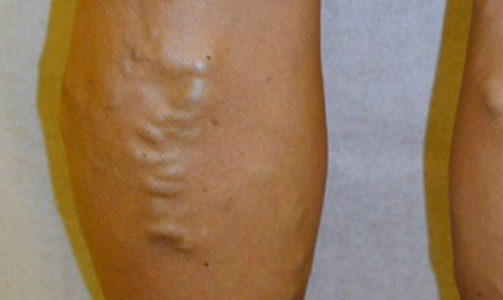 sclerotherapy-before-leg-photo