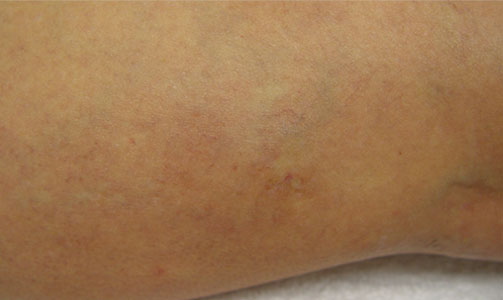 spider-vein-removal-after-leg-photo
