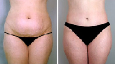 stretch-marks-before-&-after-photo-front