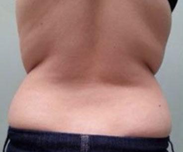 tribella-before-body-photo