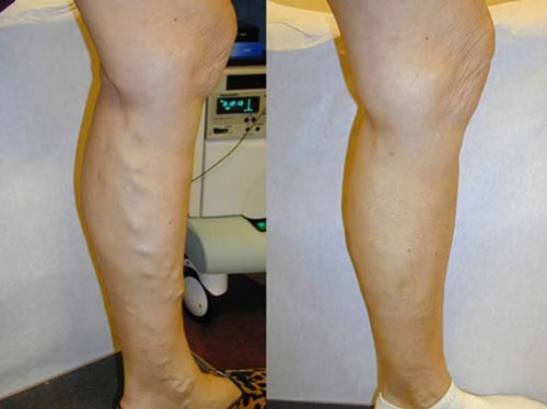 vnus-treatment-before-&-after-photo1