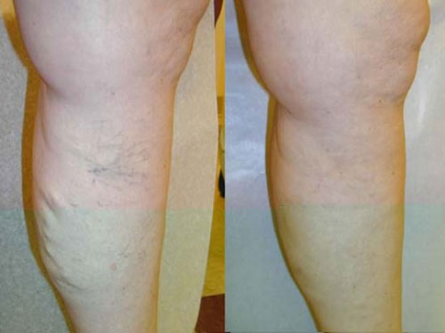 vnus-treatment-before-&-after-photo2