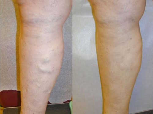 vnus-treatment-before-&-after-photo3