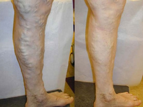 vnus-treatment-before-&-after-photo4
