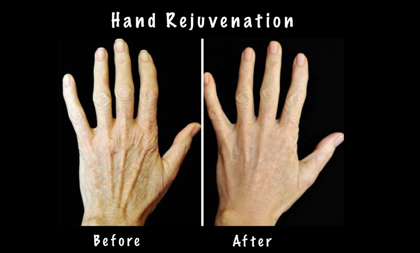 amarillo-laser-vein-Hand-Rejuvenation-3