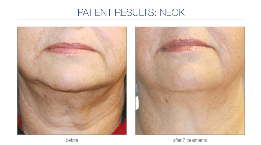 amarillo-laser-vein-Skin-Tightening-2