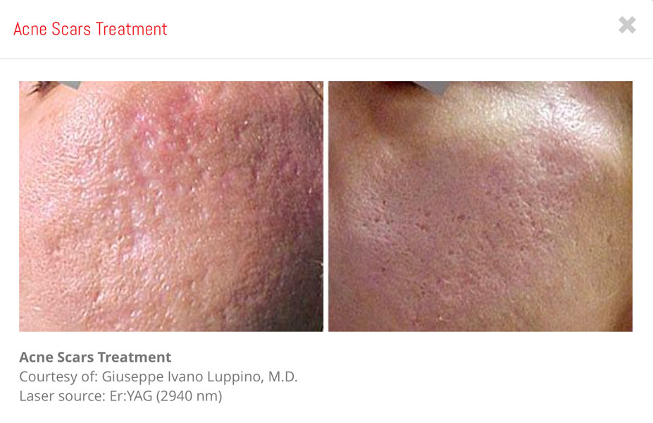 amarillo-vein-Laser-Acne-Scar-Treatment-1